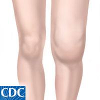 How to Treat a Swollen Knee
