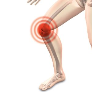 How to Treat a Swollen Knee